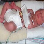 Bringing Awareness to World Prematurity Day